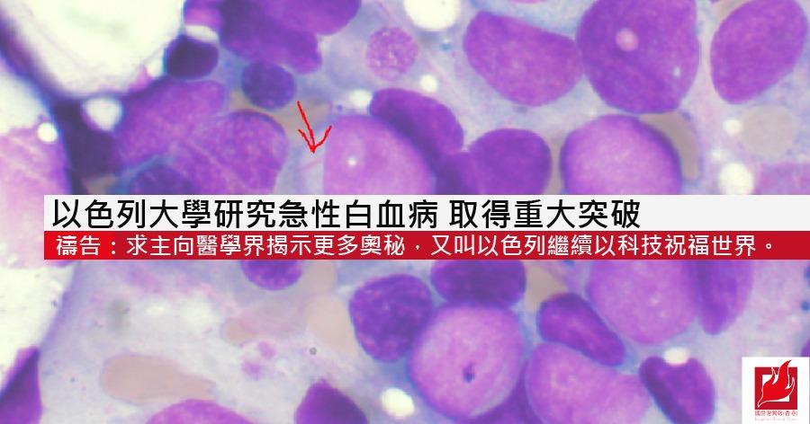 以色列大學研究急性白血病 取得重大突破